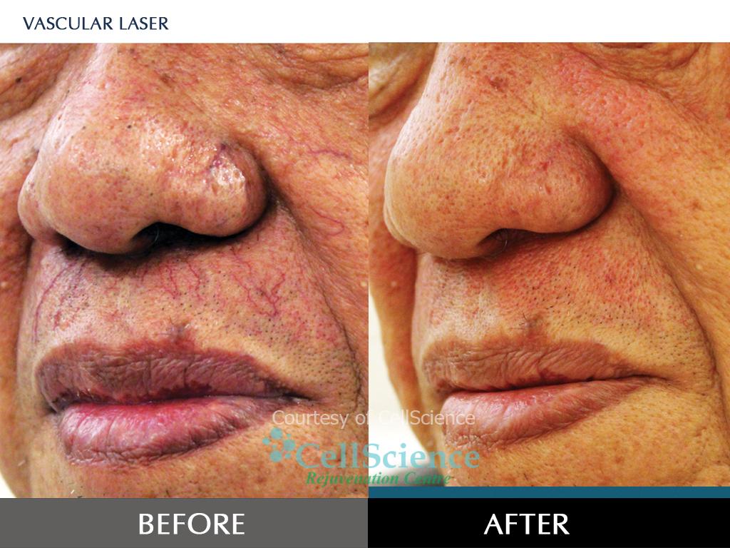 Điều trị mạch máu bằng laser 585 - Quanta System